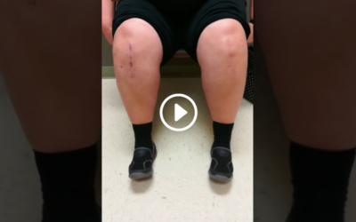 Follow-up After Stem Cell Injections in Both Knees