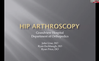 Hip Arthroscopy Presentation